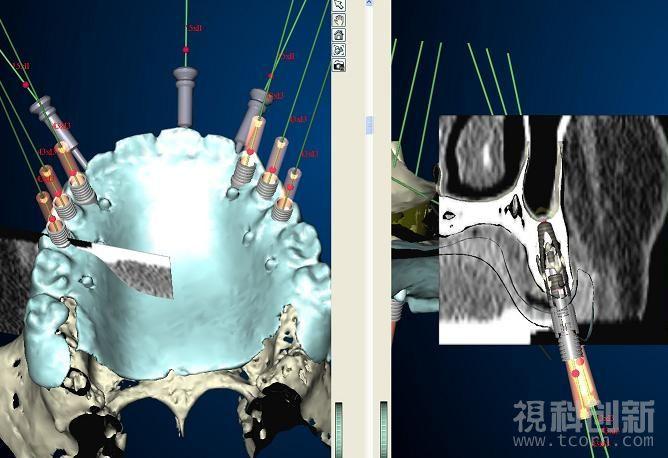 视科创新虚拟医疗手术模拟跟踪分析解决方案